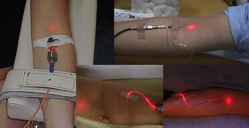 Jam Terapi Kesehatan Dr Laser 7