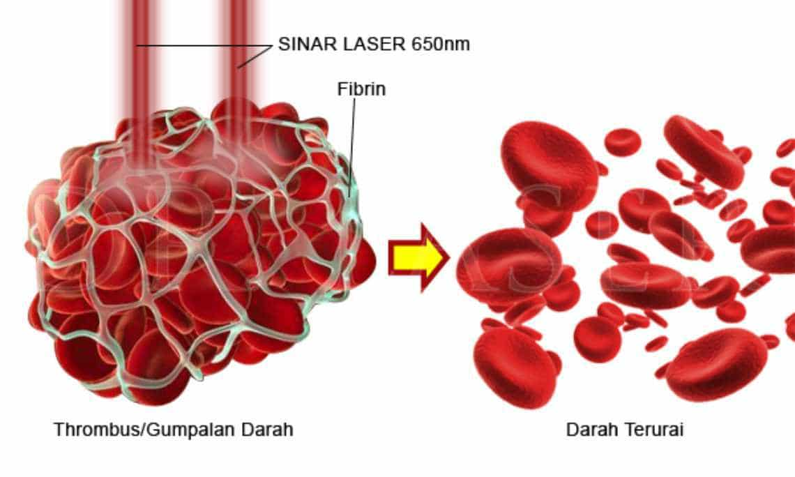 Jam Terapi Kesehatan Dr Laser 8